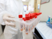 """8 وفيات و524 إصابة جديدة بفيروس """"كورونا"""" و944 حالة تعافٍ"""