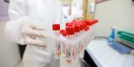 """8 وفيات و114 إصابة جديدة بفيروس """"كورونا"""" و1062 حالة تعاف خلال الـ24 ساعة الماضية"""